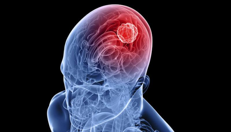 سرطان مغز و ناباروری از عوارض استفاده زیاد از موبایل
